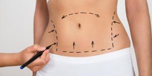 Postoperatorio y cuidados después de una liposucción