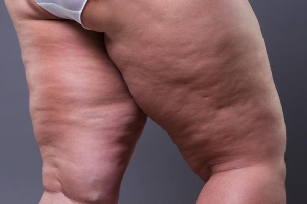 Lipedema: qué es, causas, síntomas y tratamiento
