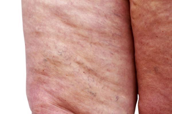Lipedema: qué es, causas, síntomas y tratamiento - Lipedema: síntomas y signos