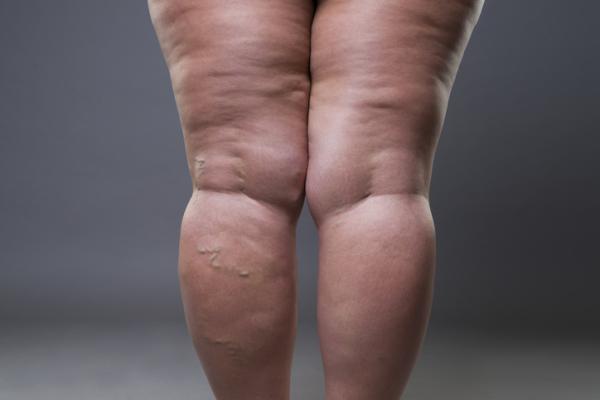 Lipedema: qué es, causas, síntomas y tratamiento - Qué es el lipedema