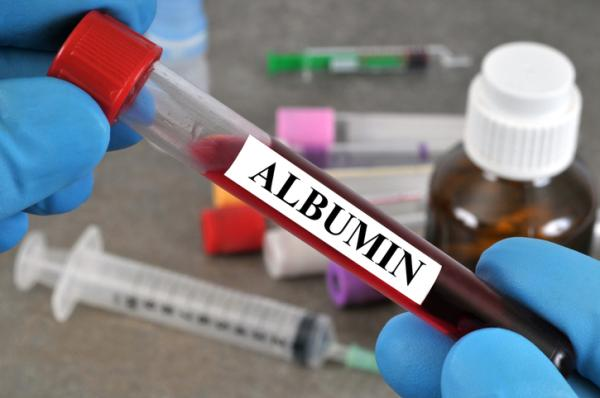 Albúmina alta en sangre: causas y síntomas