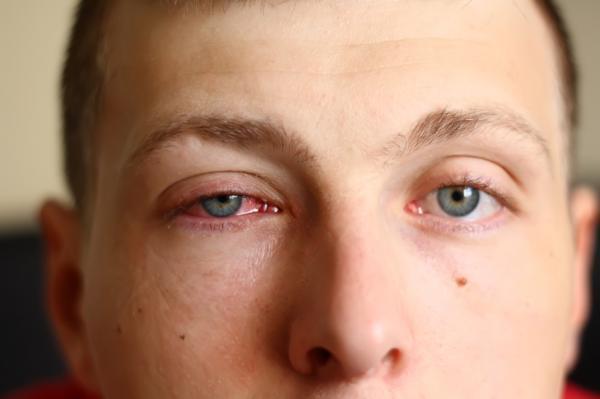 Remedios caseros para ojos llorosos o lagrimeo - Cuándo consultar al médico por tener los ojos llorosos