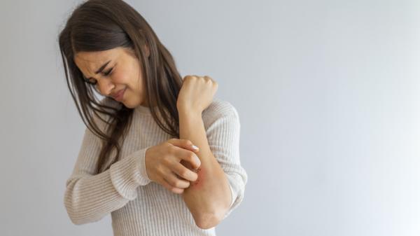 Ronchas en los brazos: causas y tratamiento