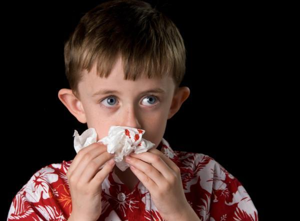 Causas de sangrado de nariz en niños mientras duermen - La resequedad nasal ocasiona sangrado en la nariz