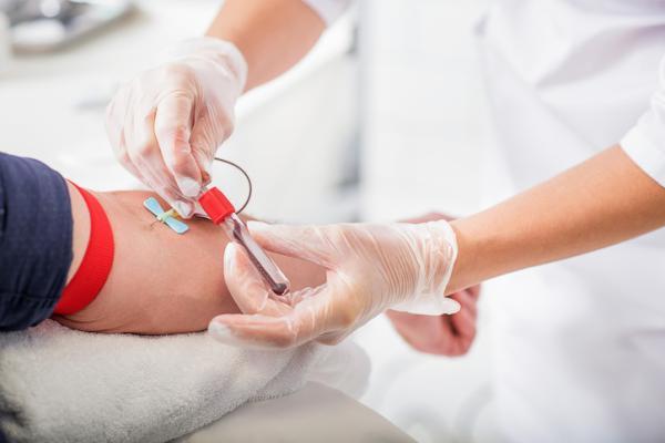 Homocisteína alta: causas, síntomas y cómo bajarla