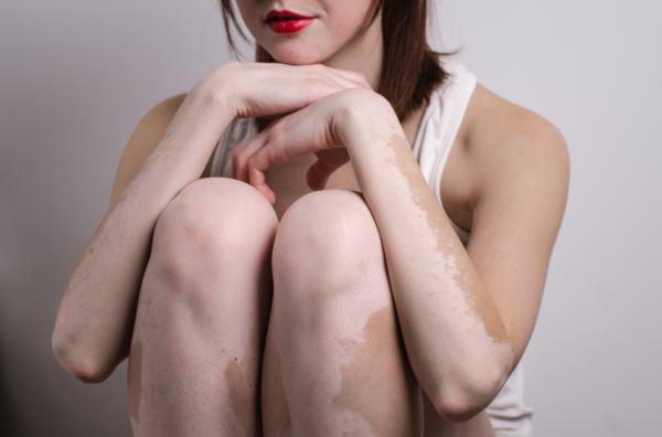 Por qué tengo la vulva blanca - Manchas blancas en la vulva por vitíligo