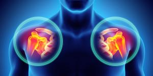Calcificaciones en el hombro: causas y tratamiento
