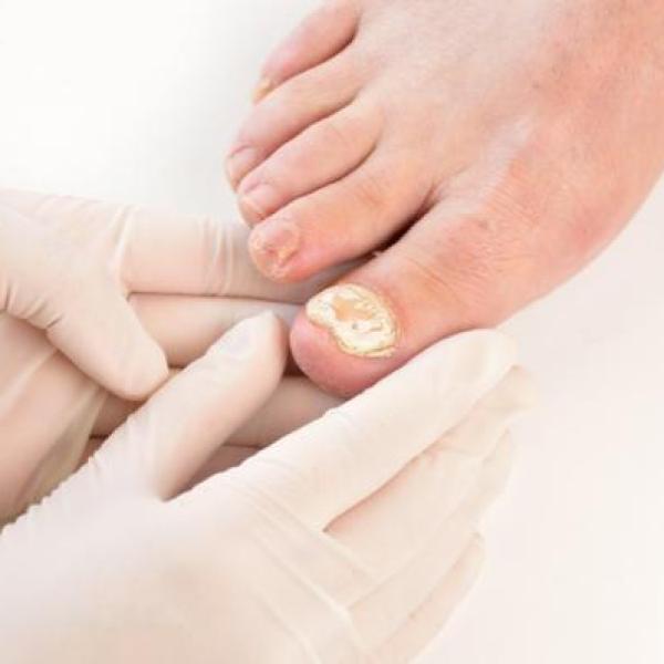 A que se debe las manchas blancas en las unas de los pies