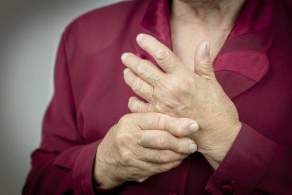 Por qué tengo los nudillos rojos - Nudillos rojos de las manos por artritis reumatoide