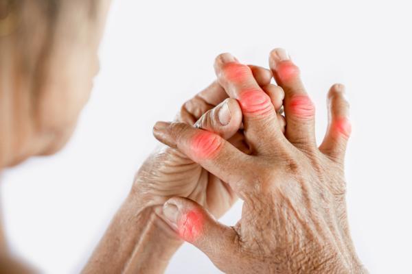 Por qué tengo los nudillos rojos - Quiragra o gota de las manos