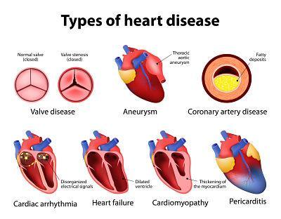 Por qué me dan taquicardias en la noche - Factores de riesgo y complicaciones de la taquicardia durmiendo