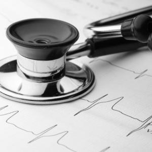 venas varicosas palpitaciones del corazón
