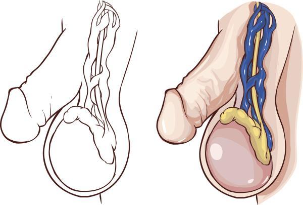 Dolor en la ingle en el hombre: causas y tratamiento - Varicocele como causa de dolor en la ingle en el hombre