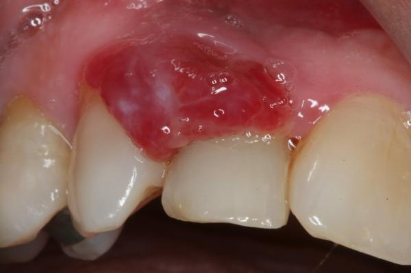 Bulto en el paladar: causas - Granuloma piógeno: bola en el paladar rosa y blanda