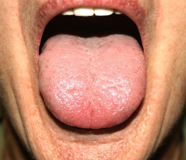 Bolitas en la lengua: por qué salen y tratamientos