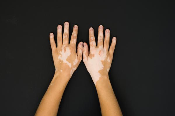 Manchas blancas en las manos: por qué salen, tratamiento y remedios