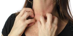 ¿Se puede tener varicela dos veces?