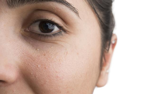 Puntos blancos en la cara: por qué salen y cómo eliminarlos