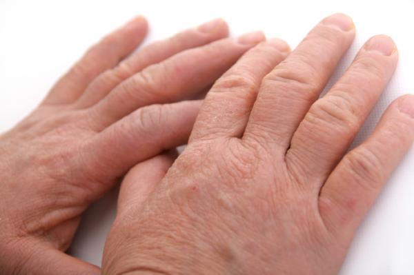Por qué tengo la piel dura - Enfermedad de la piel dura o esclerodermia