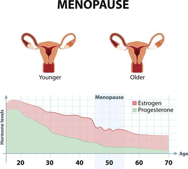 Por qué tengo la vagina hinchada - Vagina hinchada en la menopausia: vulvovaginitis atrófica