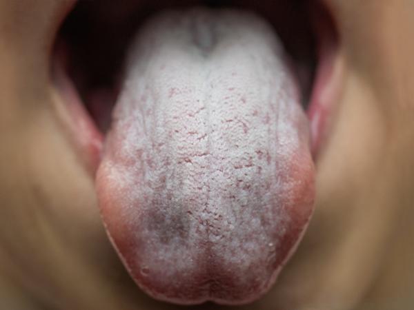 Paladar blanco: causas y tratamiento - Candidiasis