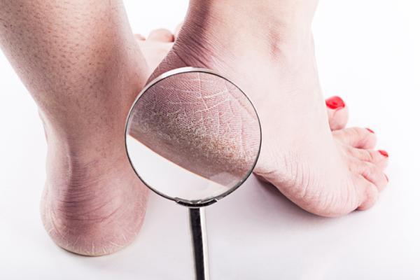 Cómo curar grietas en los pies