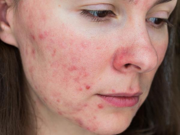 Acné pápulo-pustuloso: características y tratamiento