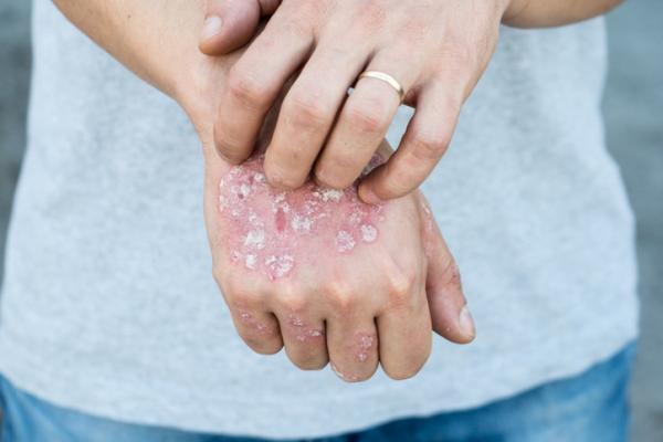 ¿La psoriasis es contagiosa?