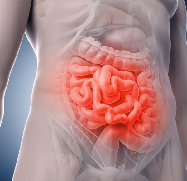 Infarto intestinal: causas, síntomas y tratamiento
