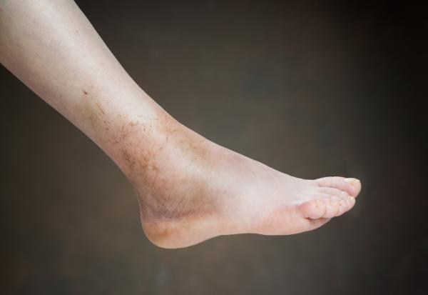 Cómo deshinchar los pies - Por qué se hinchan los pies