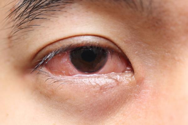 Cómo bajar la hinchazón de los ojos - Por qué tengo los ojos hinchados - causas principales