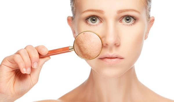 Cómo evitar las manchas en la cara durante el embarazo