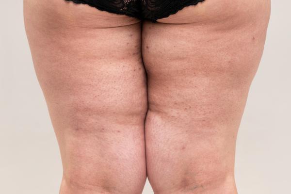 Por qué me rozan los muslos y cómo evitarlo