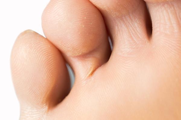 Heridas entre los dedos de los pies: por qué salen y cómo curarlas