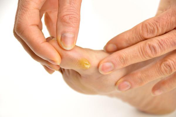 Heridas entre los dedos de los pies: por qué salen y cómo curarlas - Hiperqueratosis plantar