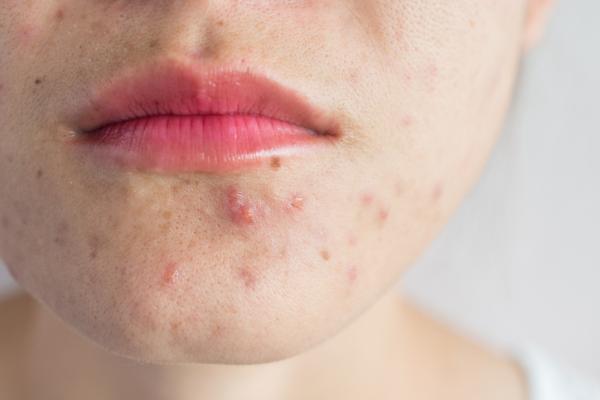Cómo eliminar el acné hormonal