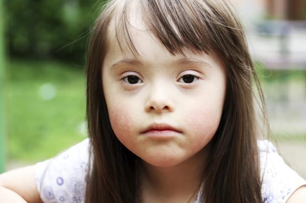 Síntomas de la leucemia - Causas de la leucemia