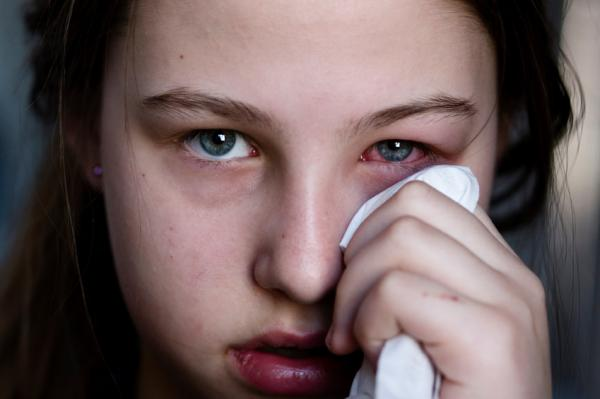 Por qué tengo el ojo rojo - Ojos rojos por infecciones