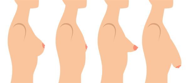 Mamas tuberosas: grados, operación y postoperatorio - ¿Qué son las mamas tuberosas?