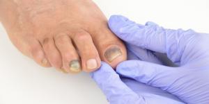 Dedo del pie morado: causas y tratamiento
