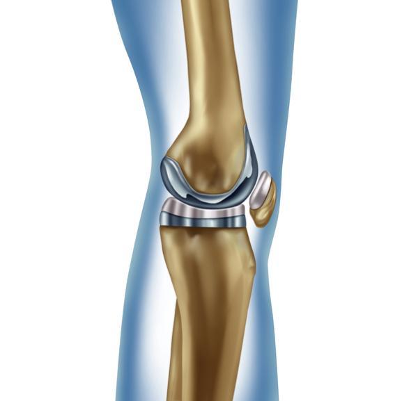 Cuidados después de una operación de prótesis de rodilla