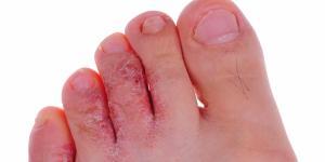 ¿Los hongos en la piel son contagiosos?