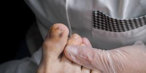 Rayas negras en las uñas: por qué salen y tratamiento