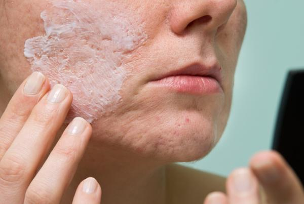 Granos en la barbilla: por qué salen y cómo quitarlos - Cómo quitar los granos en el barbilla