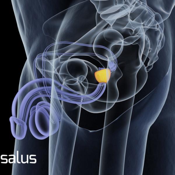 Es una próstata agrandada y una discapacidad.
