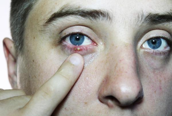 Tengo un ojo hinchado y el otro no: ¿a qué se debe? - Párpado hinchado por blefaritis