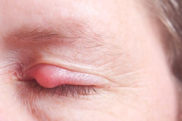 Tengo un ojo hinchado y el otro no: ¿a qué se debe? - Párpado hinchado por orzuelo