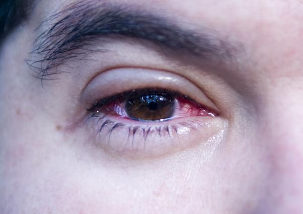 Tengo un ojo hinchado y el otro no: ¿a qué se debe?