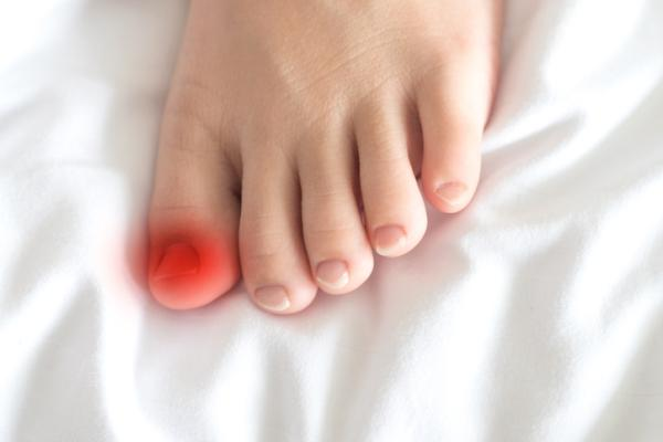 Cómo curar una infección en el dedo del pie