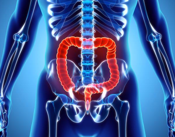 Cómo limpiar el colon sucio naturalmente - Síntomas de colon sucio
